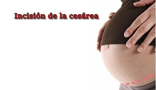 Em que semana pode um bebé nascer por cesariana?